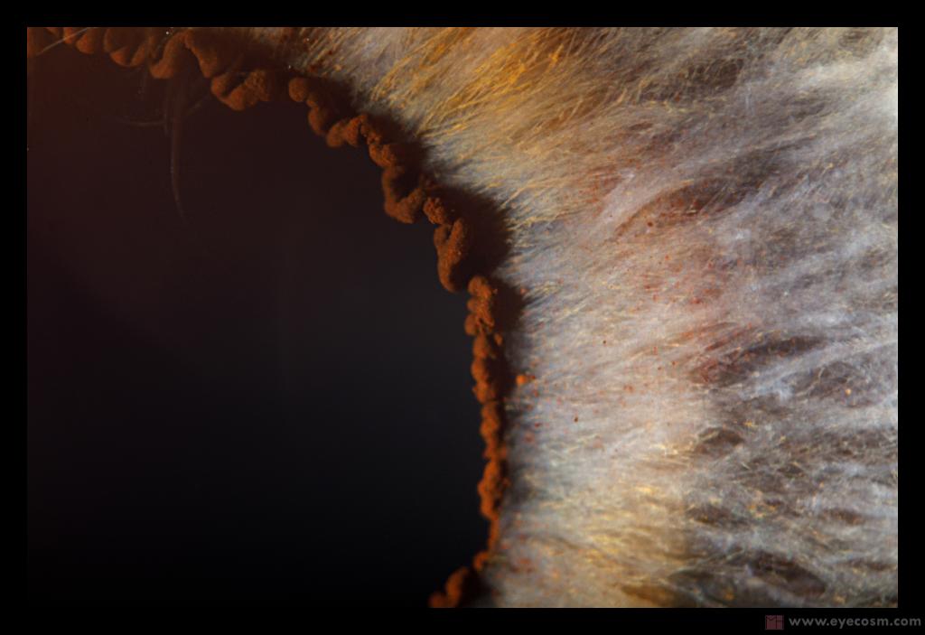 eye surface