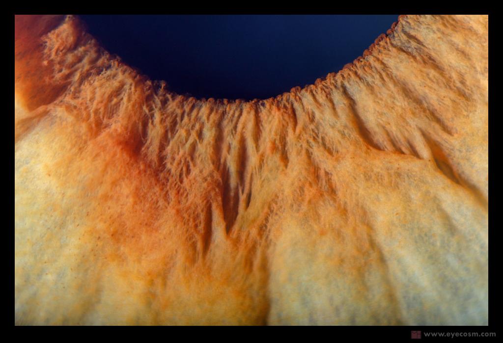 eye mountains
